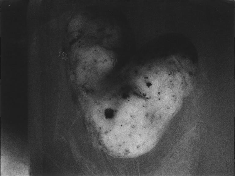 bulves-ii-potatoes-ii-1996-29x39-cm